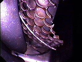 Spezialzubehör, das an das Distalende der Videoskope/Endoskope angebracht werden kann, ermöglicht auch eine Bergung defekter oder gelöster Bauteile aus Motoren, Behältern, Wärmetauschern und Leitungssystemen.